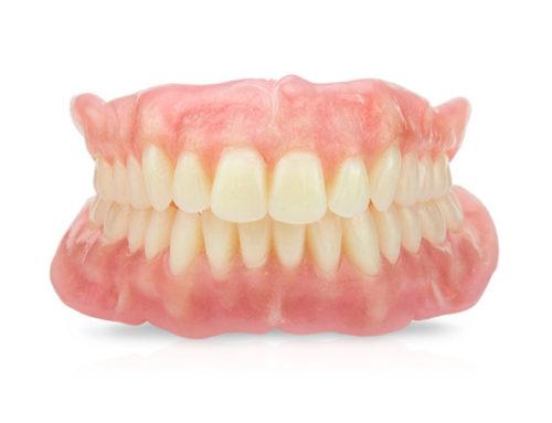 Top 5 Reasons to get Dental Implants